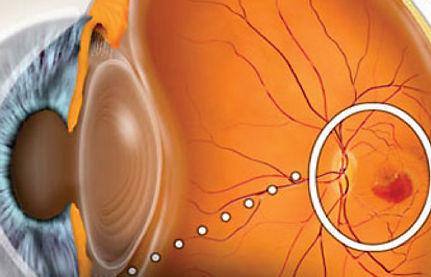 Glazastikmed_vzroslaya_oftalmolog_11.jpg