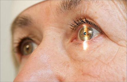Glazastikmed_vzroslaya_oftalmolog_10.jpg