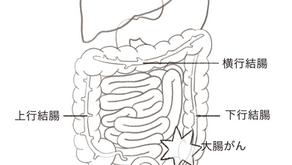 家族性非ポリポーシス大腸がん