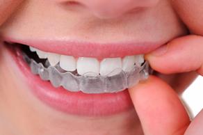 O que precisa de saber antes de optar por um branqueamento dentário