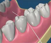Fio/fita dentária
