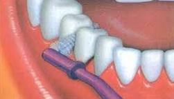 Escovilhão Dentário
