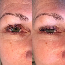 Before and After Classic Fill