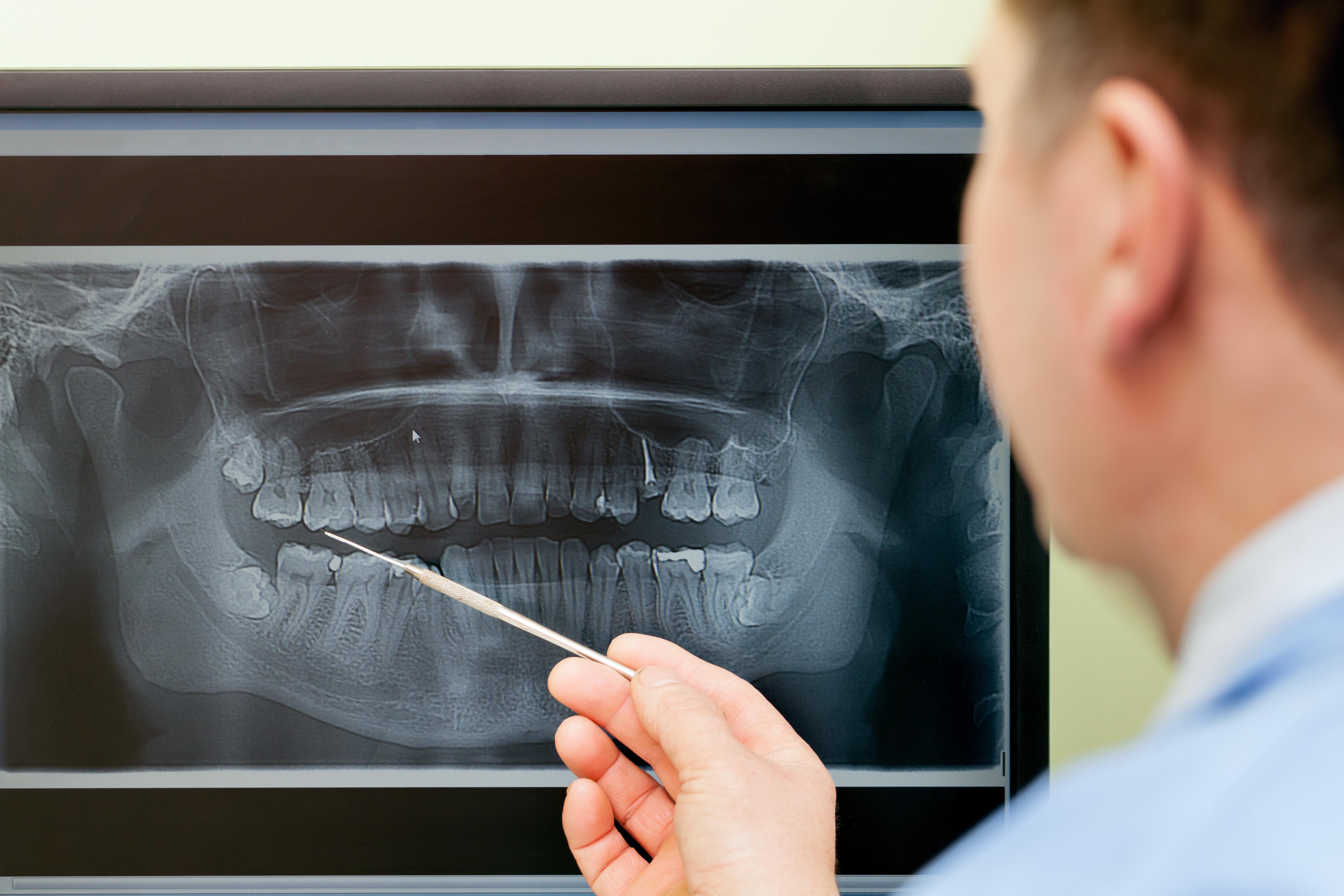 Evaluación de radiografía dental