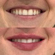 lips b and a 2.JPG