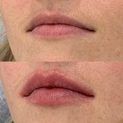 lips b and a.JPG