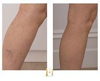 sclero leg 1.jpg