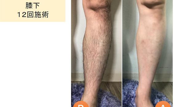 男性脚 - 脱毛