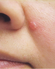 basal-cell-carcinoma.png