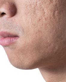 acne scars.jpg