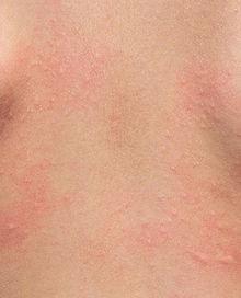 contact dermatitis.jpg