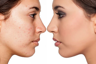 acne before after 2.jpg