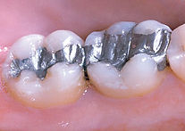 silver fillings.jpg