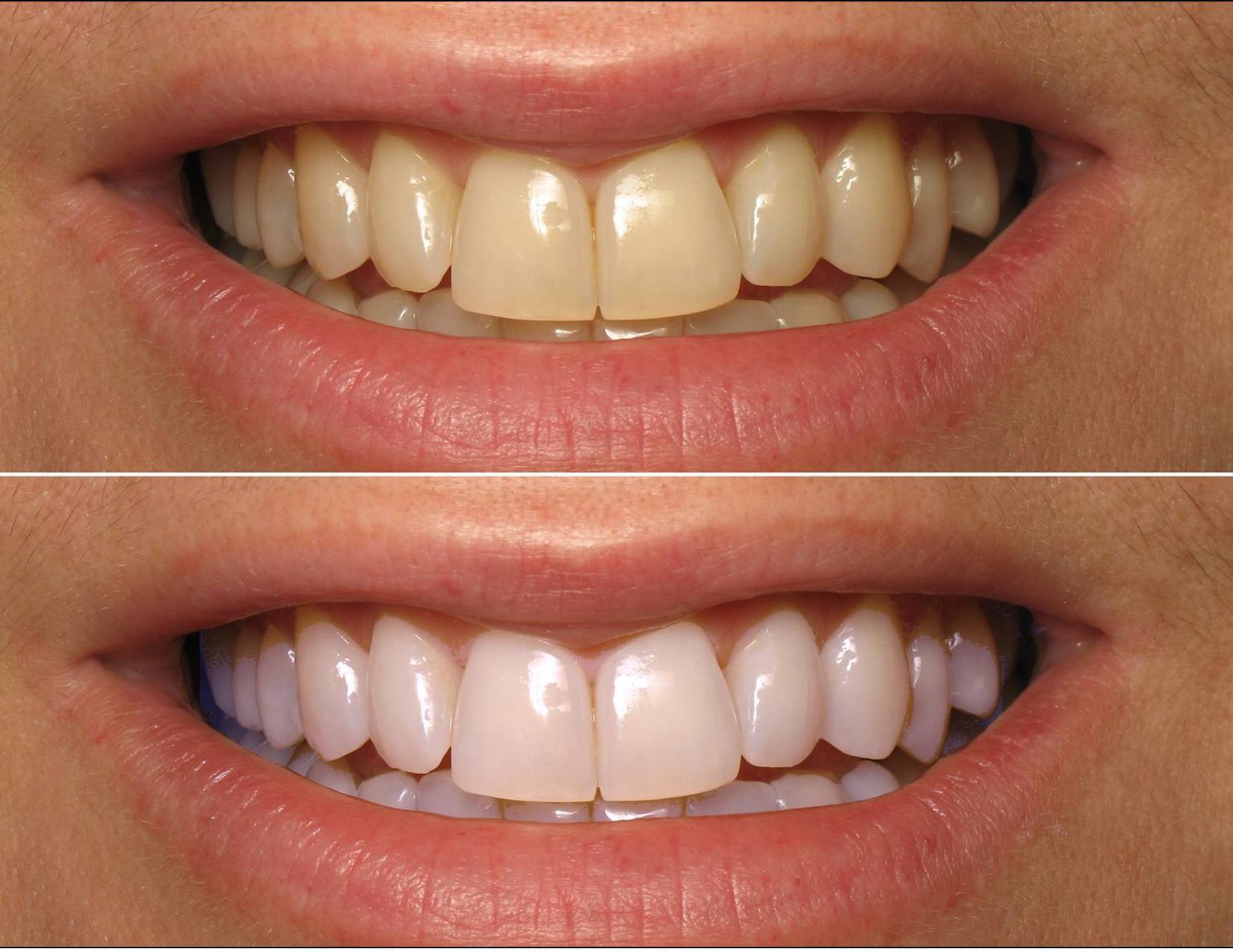 Отбеливание зубов ZOOM4