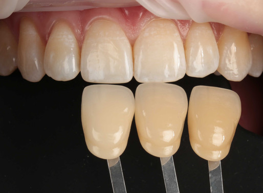 Зачем стоматолог фотографирует пациента?