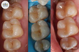 Лечение кариеса зубов Попов К.П.