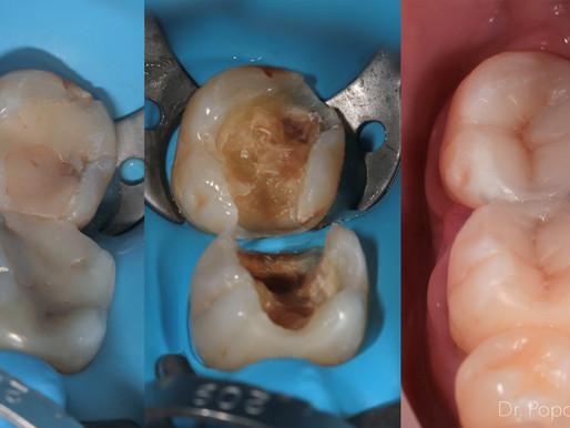 Реставрация сильно разрушенных зубов фотокомпозитом.