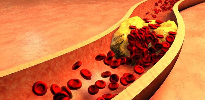 Kolesterola: zer da eta nola eragiten dio gure osasunari