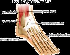 Post Tibial Tendonitis