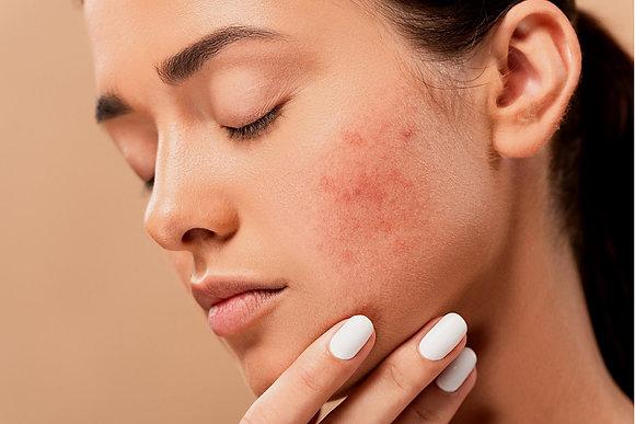 Lahjakortti Nuoren ihonhoito