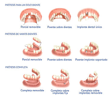 global dental Leganés | Empaste y endodoncia