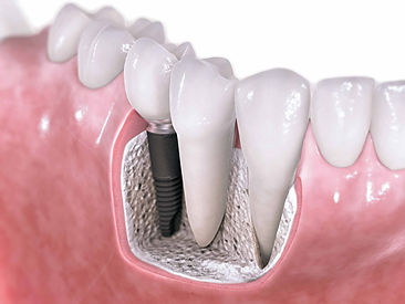 Infografía implante dental titanio