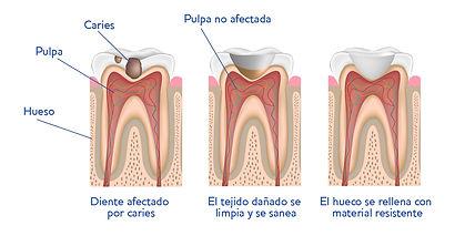 global dental Leganés | Gráfico Empaste