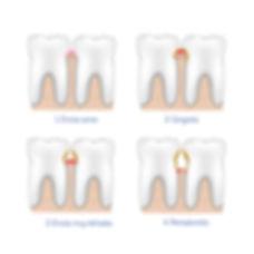 Grados de encías dañadas - clínica dental global