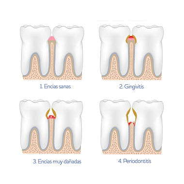 Grados de encías dañadas - clínica dental global