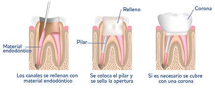 global dental Leganés | Gráfico Endodoncia