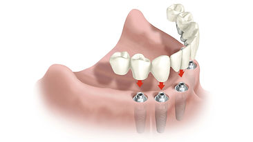 Implantes dentales en Leganés | promoción