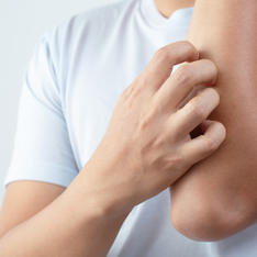 Skin-Eczema-Psoriasis