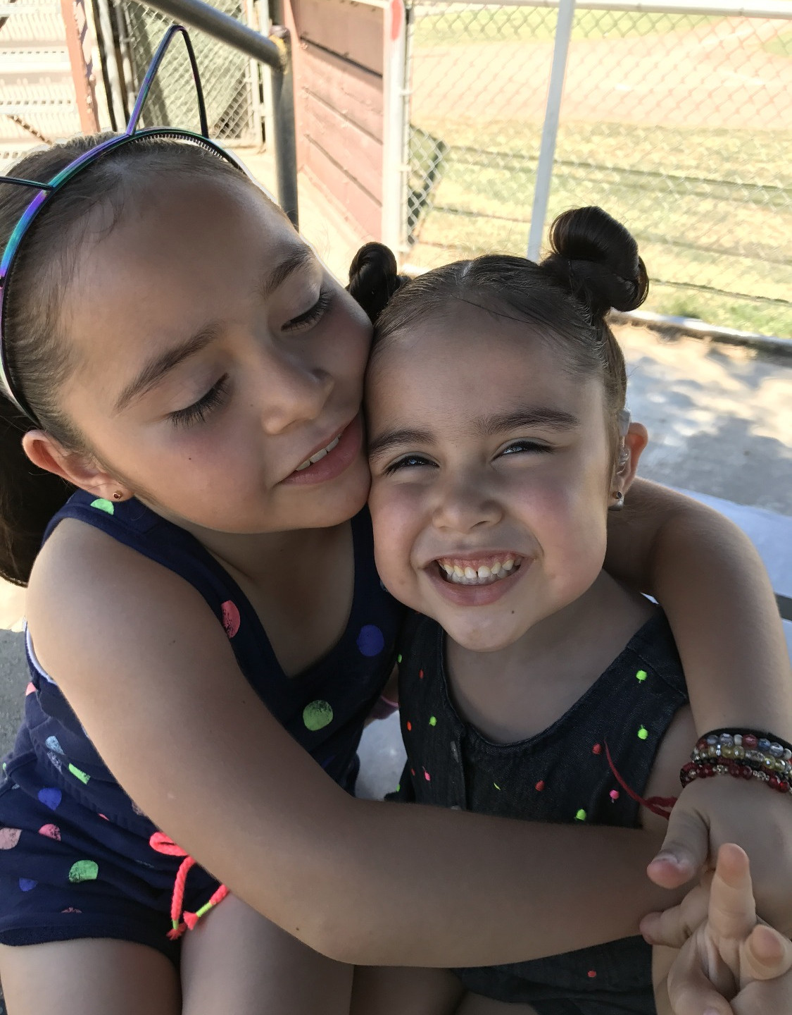 Sisters with cochlear implants