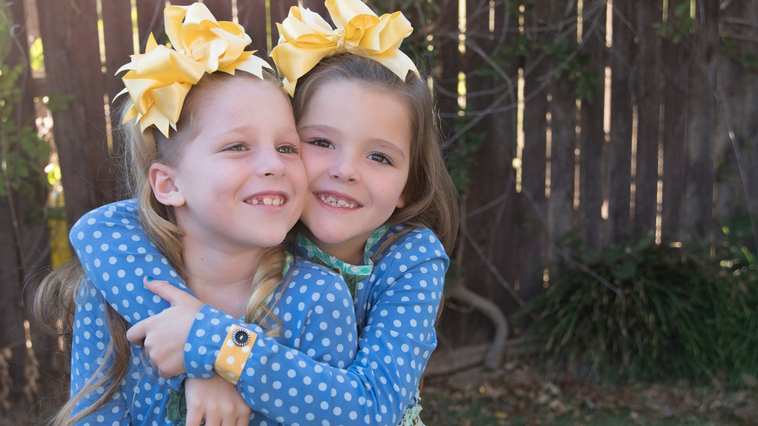 Cochlear twins