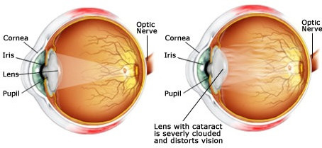 Cataracts & Glaucoma: What's new?