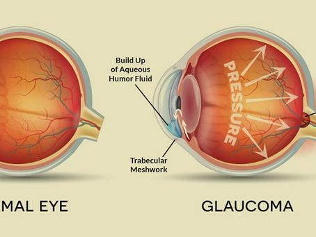 Glaucoma 101