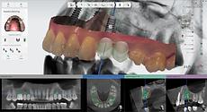 3Shape Implant Planner 2019_implant plan