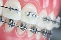 orthodontics middle easterner residency.