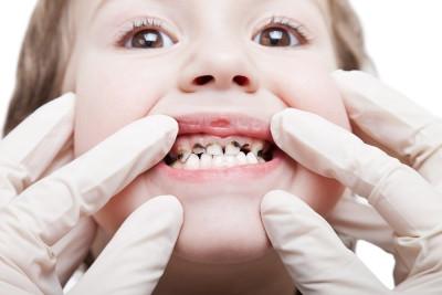 Pediatric Endodontics Residency Program, Indian Dentist Example, Writing and Editing