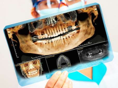 Anti-Tobacco India, International Dentist, Oral Medicine and Maxillofacial