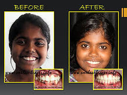 orthodontics india.jpg