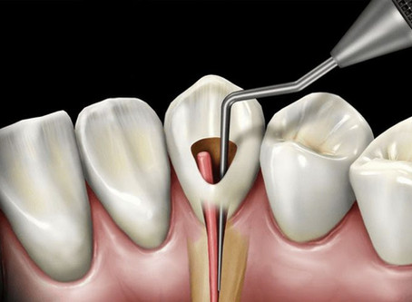 Indian Application Endodontics Residency, Writing & Editing Service for Personal Statement