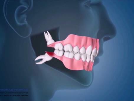 Sample Personal Statement for Prosthodontics Residency, Masters, Applicant from Kuwait