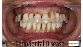Advanced Training in Periodontics, Residency, Certificate Programs, Personal Statement Sample