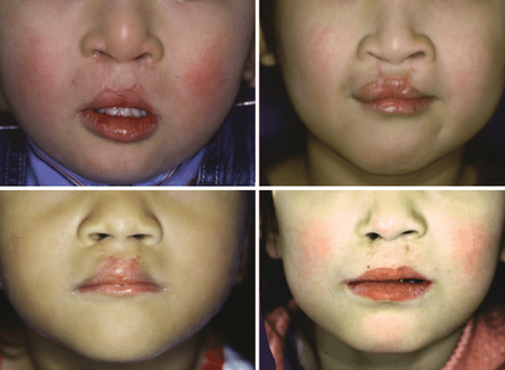 Indian Applicant, Canada, International Dentist, Mother and Sisters born with Cleft Lip and Palate