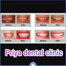 priya dental personal.jpg