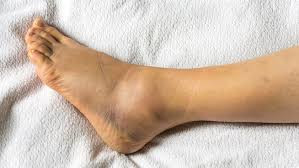 Ankle sprain? How to get back on your feet!