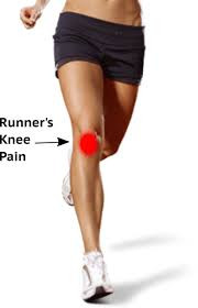 I have kneecap pain... should I run?