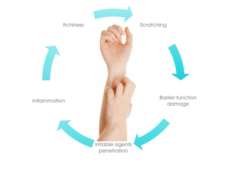 A Natural Approach to Eczema