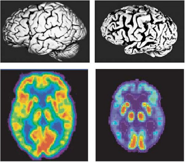 Diagnosing Dementia